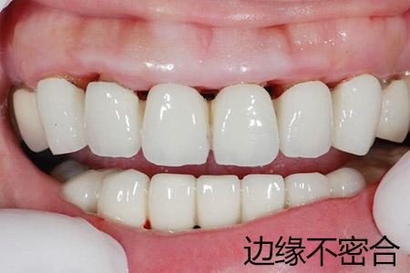 福州中泽口腔http://www.fjzzkq.cn 福州最好的口腔医院http://www.fjzzkq.cn 福州牙科医院http://www.fjzzk ...