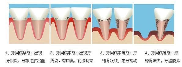 福州牙科医院http://www.zzekq.com